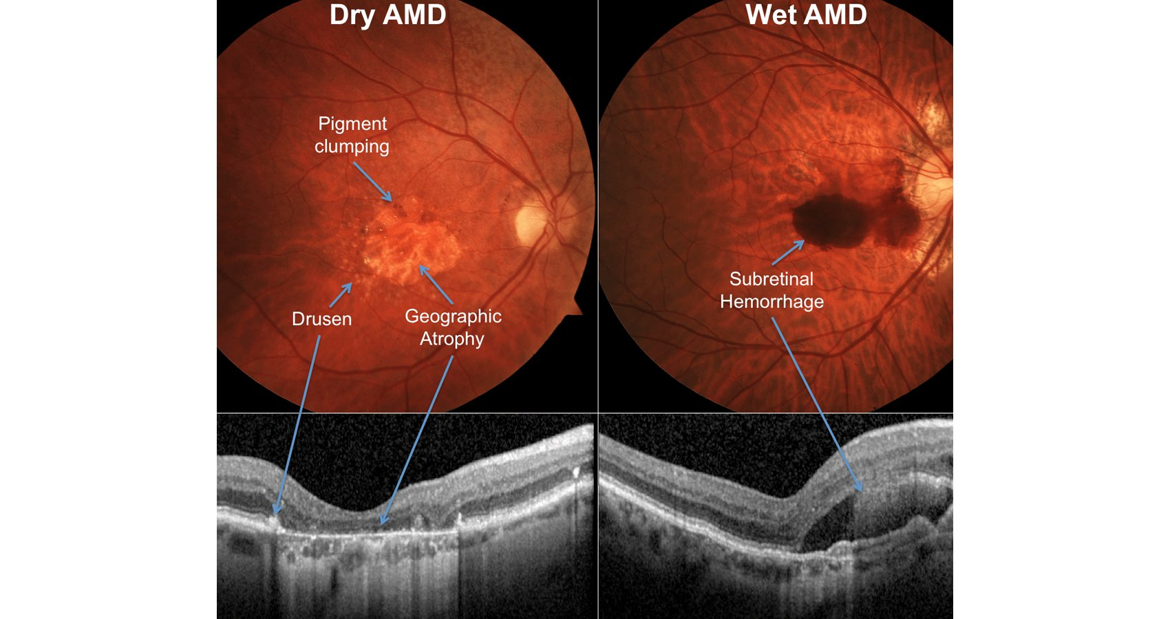 Age-Related Macular Degeneration: Poised For A New Treatment Era