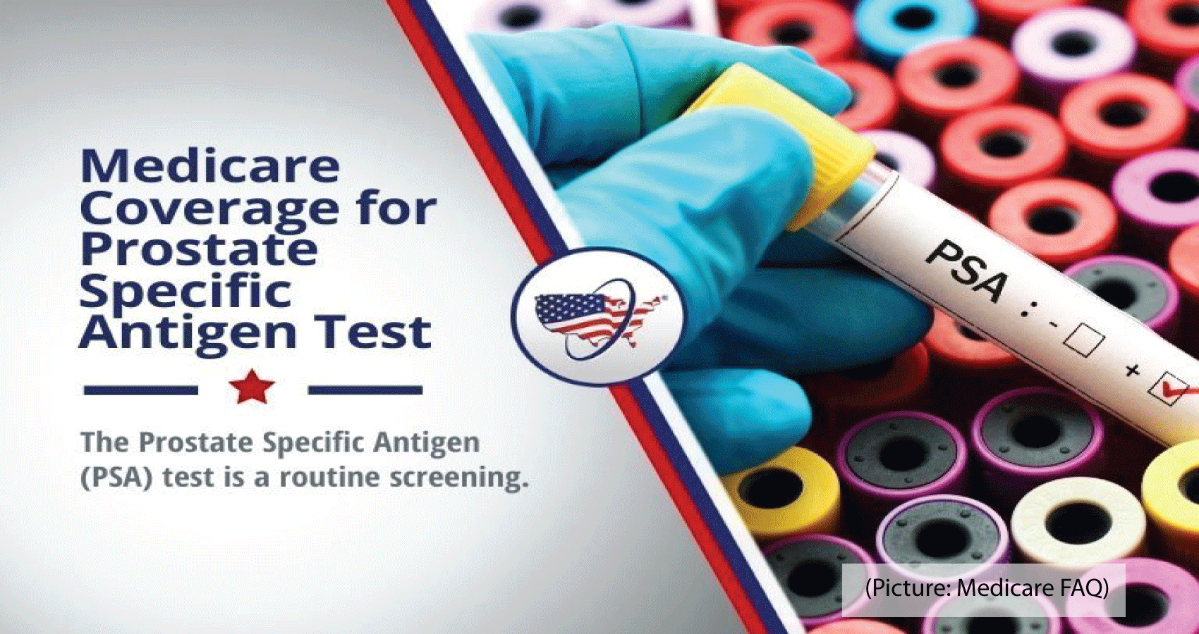 Medicare Covers Annual PSA-Based Screenings